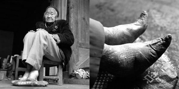 Last Glimpses of Foot Binding Tradition 5